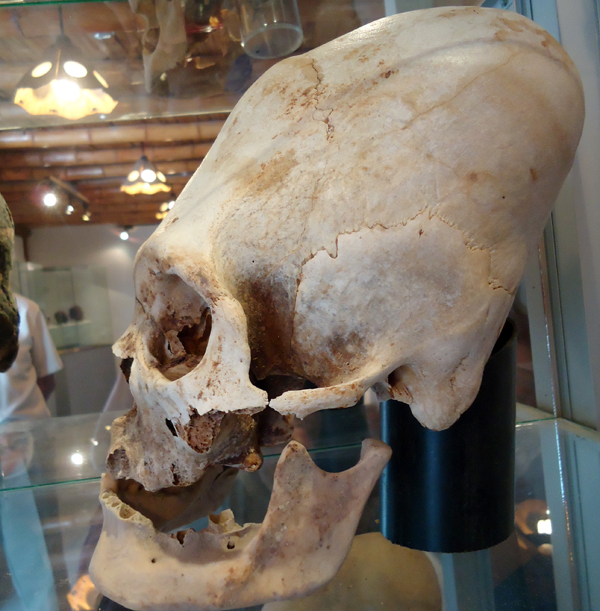 wydłużone-czaszki-malta.jpg